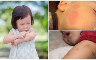 एक वयस्क या बच्चे की त्वचा पर मच्छर काटने
