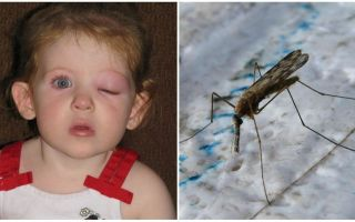 मच्छर के काटने के बाद बच्चे के पास घबराहट होने पर क्या करना है