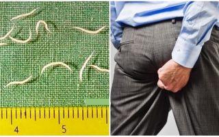 वयस्कों में pinworms के लक्षण और उपचार