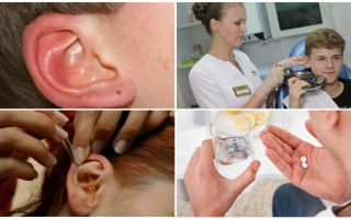 किसी व्यक्ति के कान में टिकटें: लक्षण और उपचार