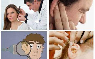 अगर एक तिलचट्टा कान में चढ़ गया तो क्या करें