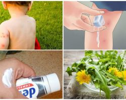 एक बच्चे मच्छर के काटने को कैसे अभिषेक करें