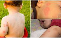 मच्छर के काटने के बाद बच्चों के लिए धन