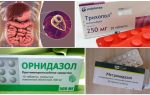 वयस्कों में जिआर्डिया के इलाज के लिए सबसे अच्छी दवाएं