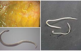 Pinworm संक्रमण के तरीके