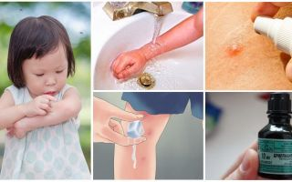 एक बच्चे में मच्छर के काटने का इलाज कैसे करें और कैसे करें
