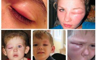 आंखों में ब्लैकबर्ड बिट - सूजन को हटाने और खुजली को शांत करने के लिए कैसे