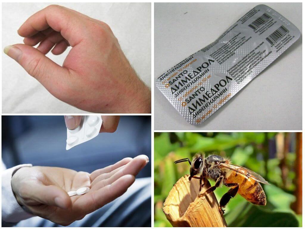 बाइट एलर्जी उपचार