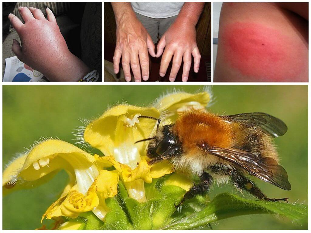 Bumblebee काटने